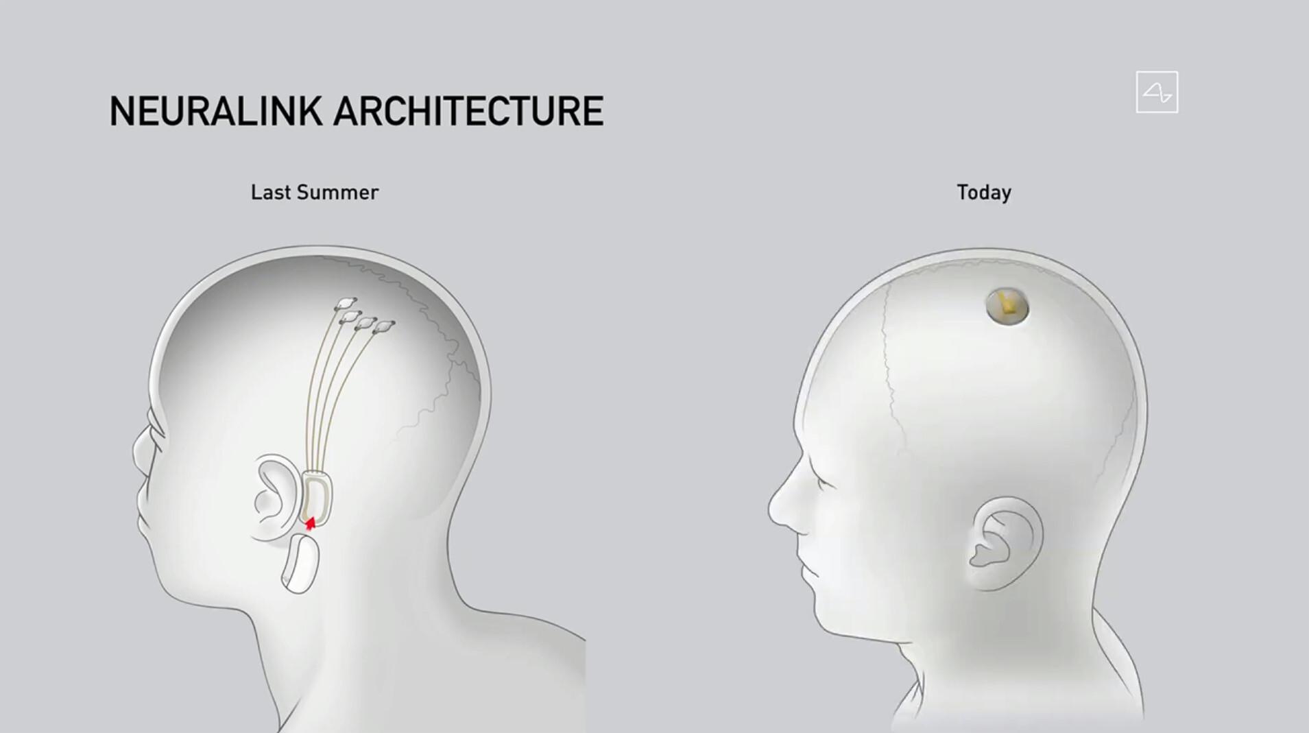 La conexión del cerebro humano con un ordenador, a través de un chip, muestra su primera demo